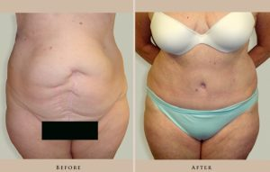 abdominoplasty case04 front lg