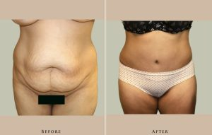 body abdominoplasty 1337911770793