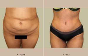 body abdominoplasty 1358961715150