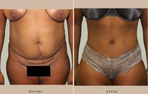 body abdominoplasty 1387301353873