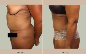 body abdominoplasty 1387301467510