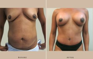 body abdominoplasty 1403193757917