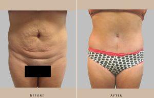 body abdominoplasty 1429108539150