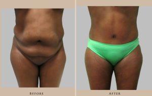 body abdominoplasty 1444070283650