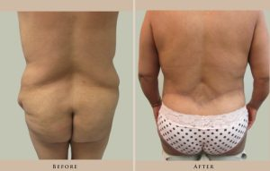 body body contouring 1414631273090