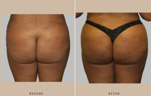 body brazilian butt lift 1387305546447