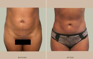 body liposuction 1389997982341