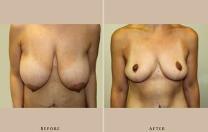 body mommy makeover 1361370779091