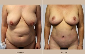 body mommy makeover 1372364819781