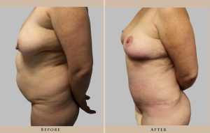 body mommy makeover 1372364922113