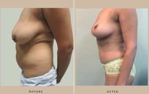 body mommy makeover 1429105303536