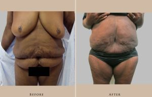 body panniculectomy 1429107236043