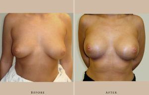 breast augmentation case06 front lg