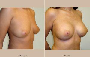 breast augmentation case06 oblique lg