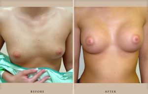 breast augmentation p01 front lg