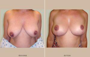 breast augmentation with lift case4 lg