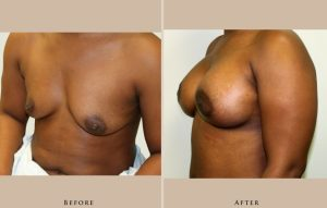 breast breast augmentation 1367460215344