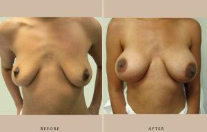 breast breast augmentation 1430154679595