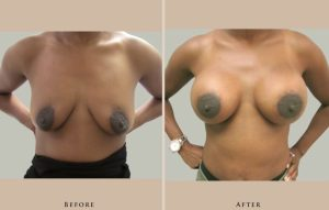 breast breast augmentation 1447019480546