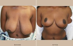breast breast augmentation and lift 1372434931178