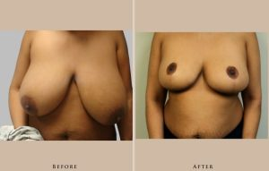 breast breast reduction 1338219071676