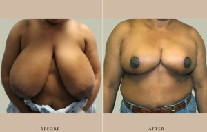 breast breast reduction 1372435456958