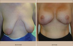 breast lift augmentation p01 front lg