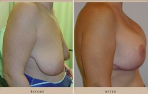 breast lift augmentation p01 side lg