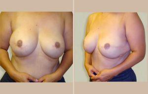 breast reconstruction case1 frontandsidefinal lg