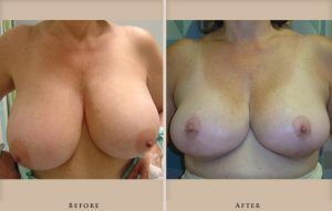 breast reduction p02 front lg