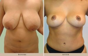 breast reduction p04 front lg 1