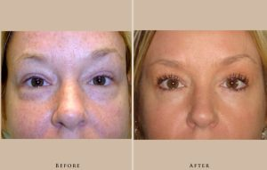 eyelid case1 front lg