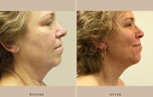 face neck lift 1351204496612