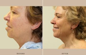 face neck lift 1351204626005