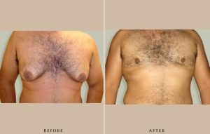 male breast reduction case2 front lg