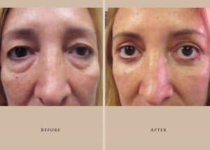 blepharoplasty case 5.1