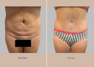 body abdominoplasty 1429108539150.1.1
