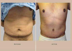 body abdominoplasty 3.1 1