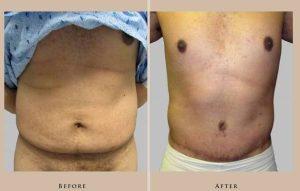 body abdominoplasty 3.1