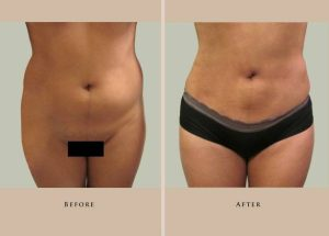 body liposuction 1387307916955 front