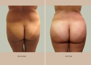 body liposuction 1387308029247 back