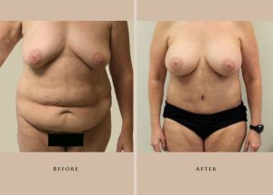 body mommy makeover 1356110940232 front