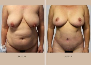 body mommy makeover 1372364819781 front