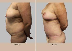body mommy makeover 1372364922113 side