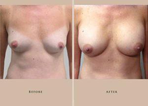 breast aug case2.2