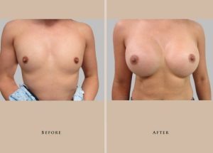 breast augmentation intro