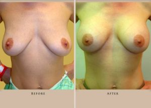 breast augmentation p03 front lg