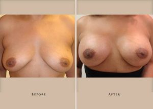 breast augmentation p05 front lg