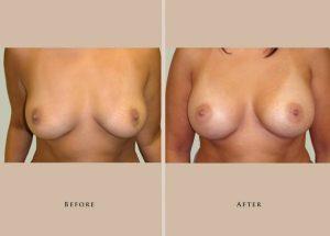 breast breast augmentation 1337913304932