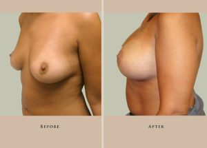 breast breast augmentation 1337913370930